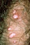 Molluscum on genitals
